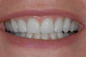 veneers-colourfix